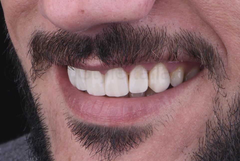 smile after composite dental makeover