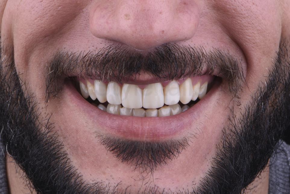 happy smile after dental restorations