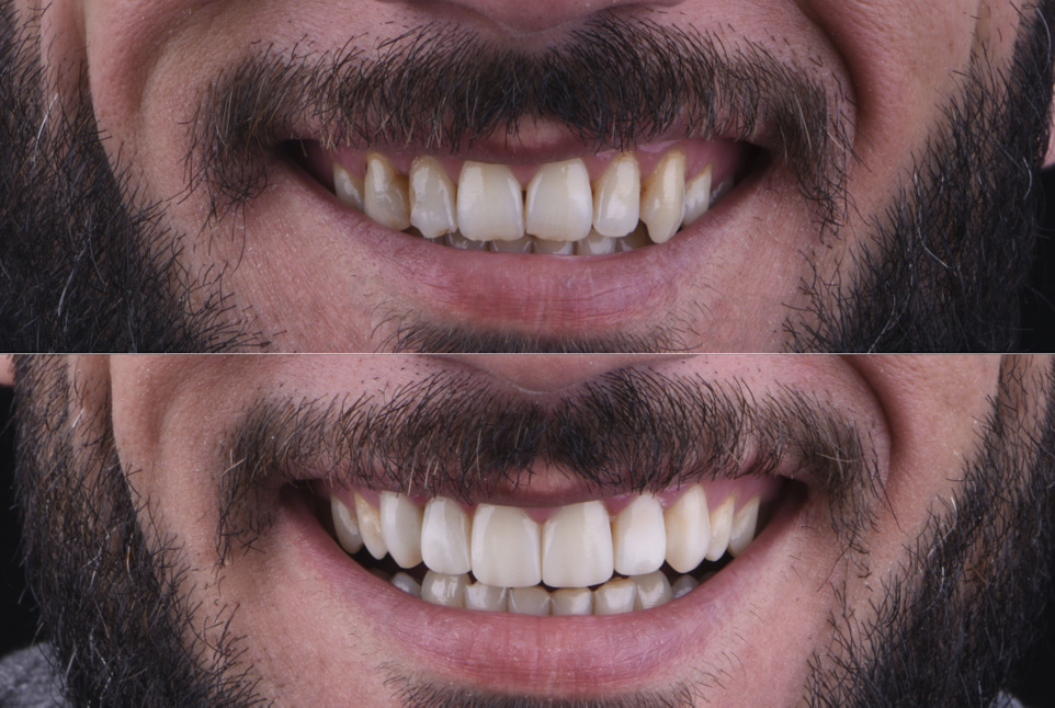 before and after direct composite veneering