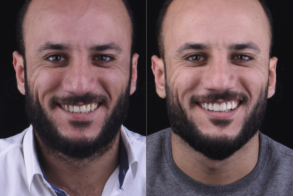 before and after dental restorations