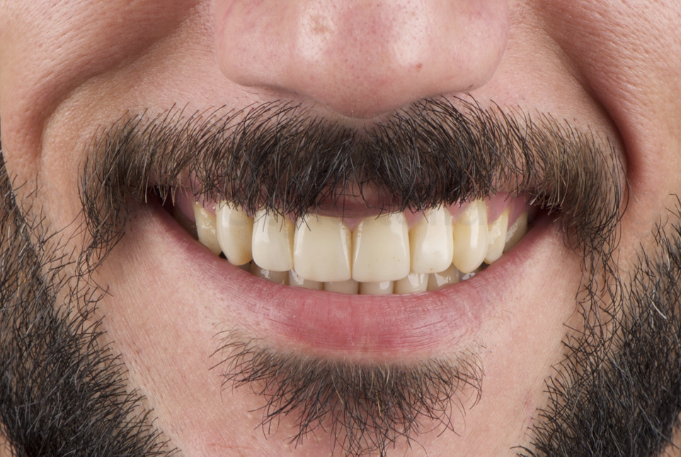 smile restored with composite direct veneers