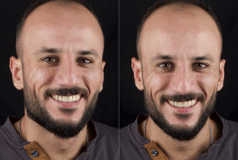 happy smile of patient one year after dental makeover