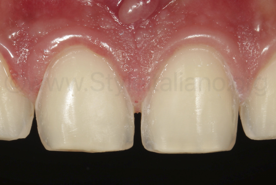 juxtagingival veneer preparation