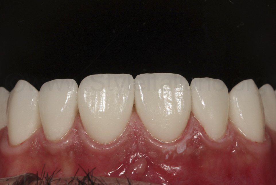cemented veneers on the upper arch