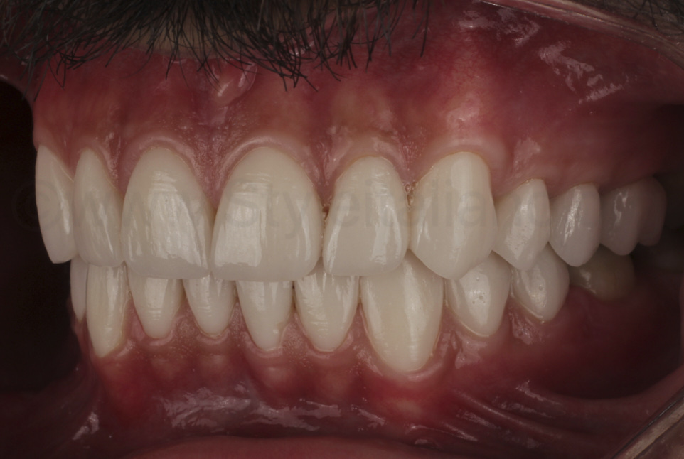 intraoral picture of upper and lower veneer makeover