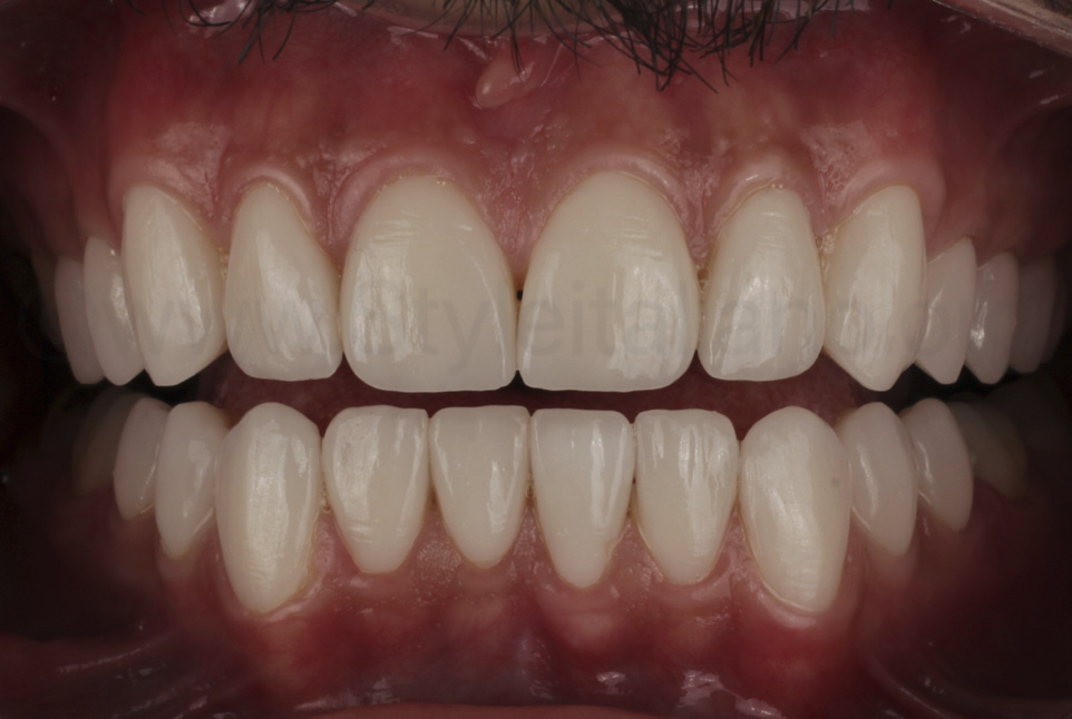 final result after veneer restorations of upper and lower teeth