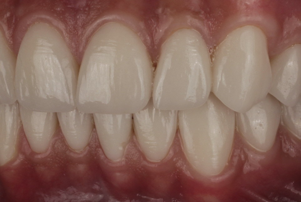 veneer preparation un upper incisors