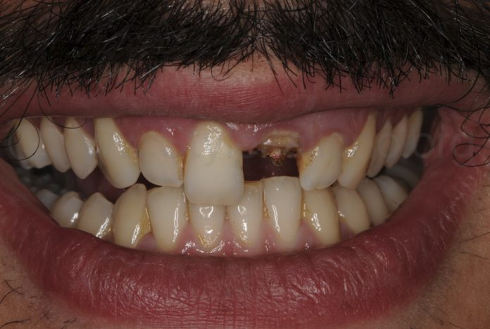 broken front tooth