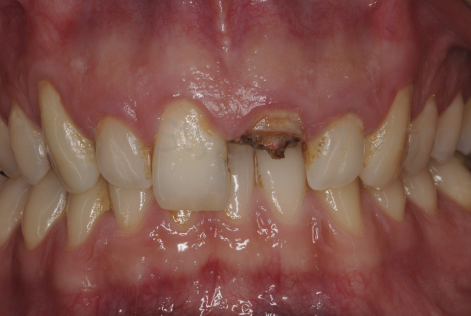 severely broken central incisor
