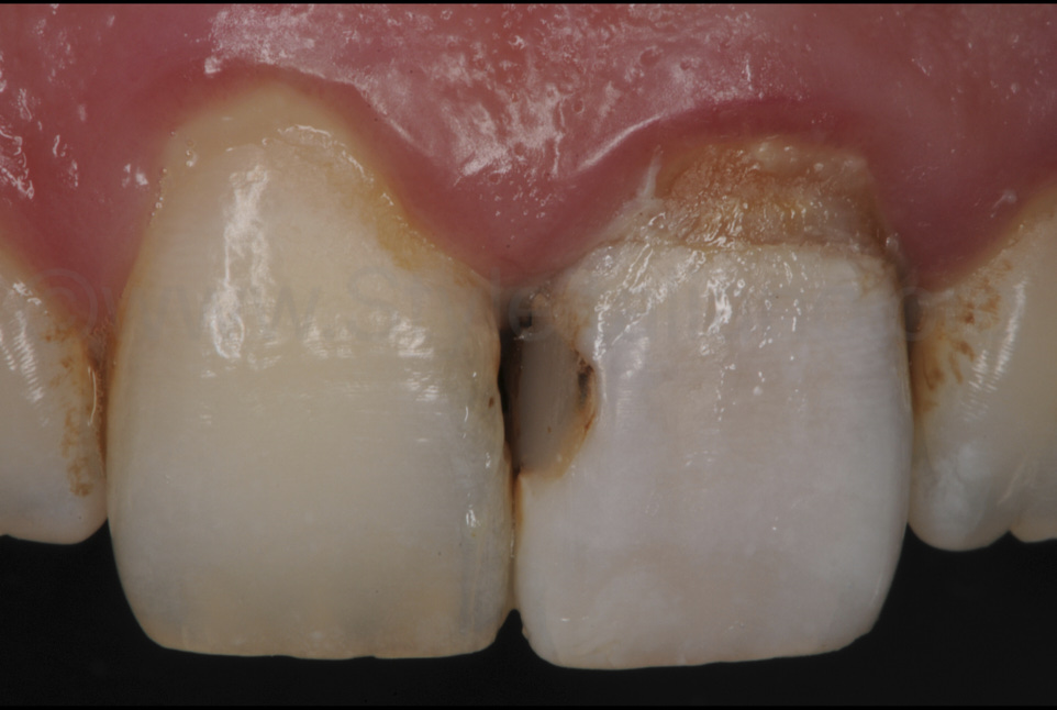 proximal multiple caries