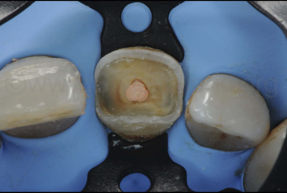 gutta-percha filling of root canal