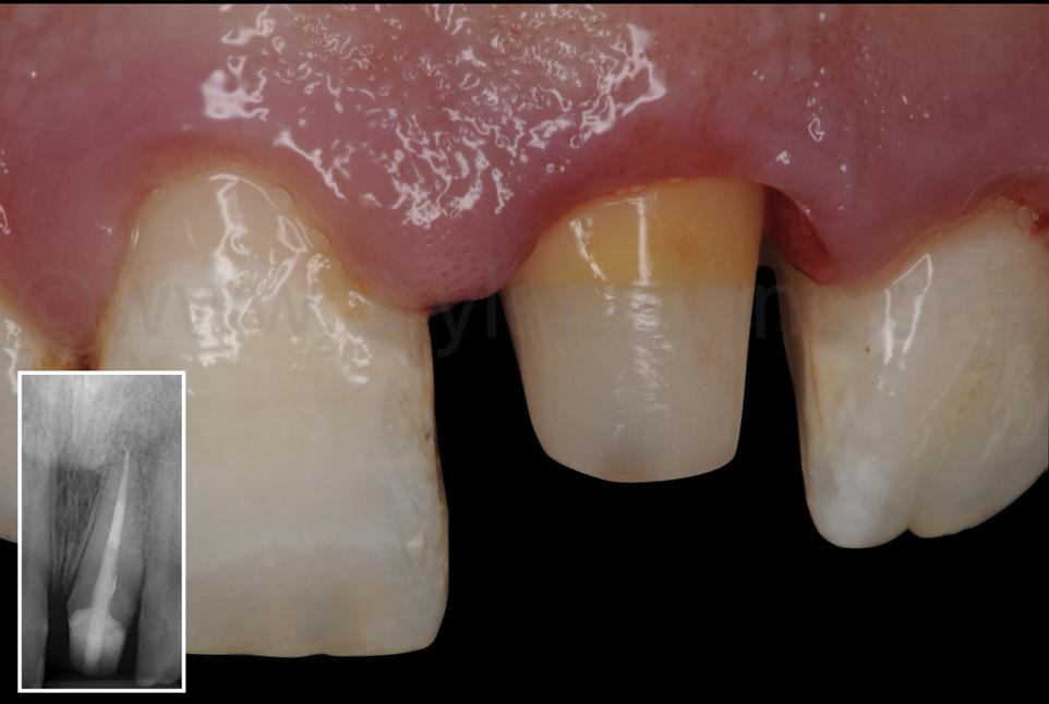 central incisor abutment
