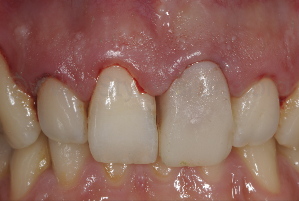 gingival bleeding due to scaling