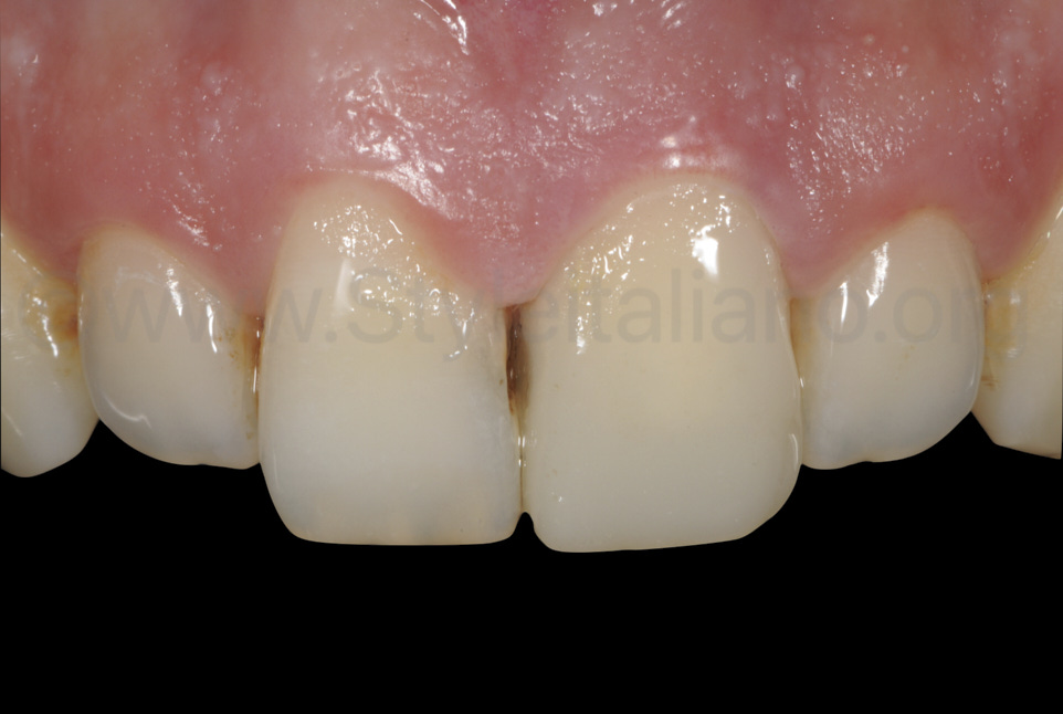 healthy gums and proximal caries on central incisor