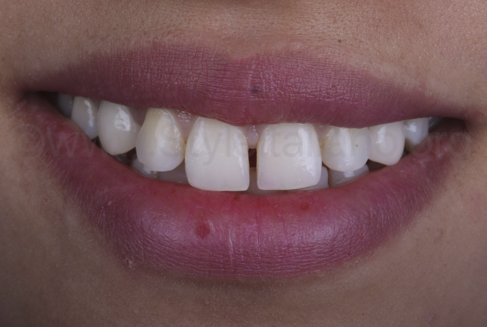 crooked smile with diastema