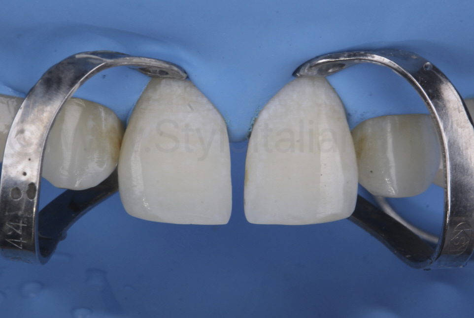 etched frosty dental enamel