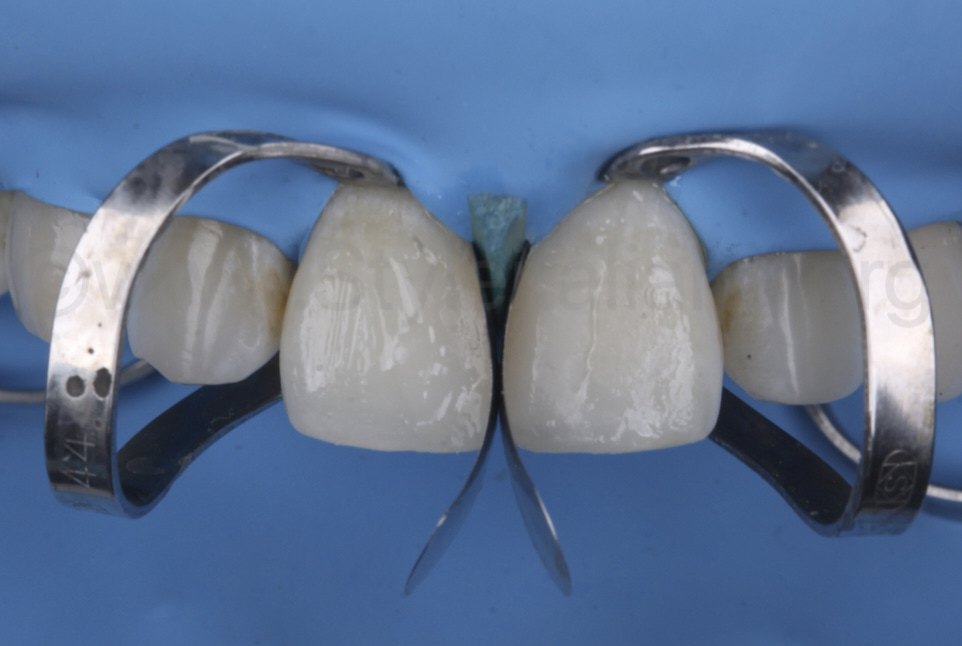 sectional matrices for mesial anatomy of incisors