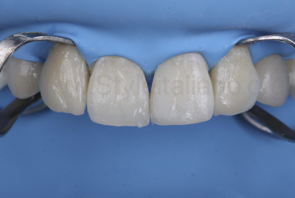 direct restoration of upper incisors with composite resin