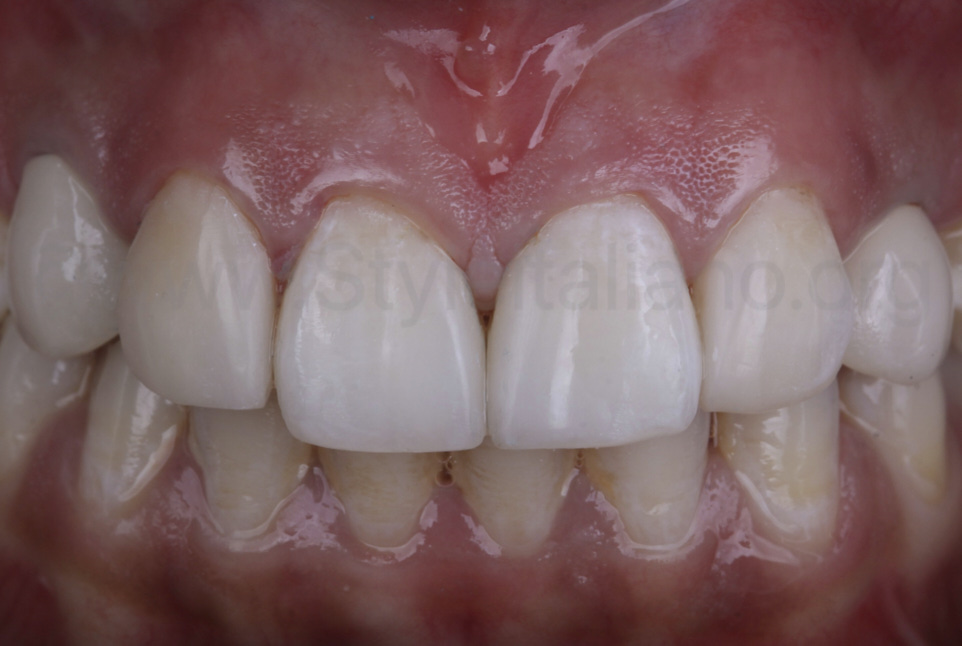 teeth after direct diastema closure