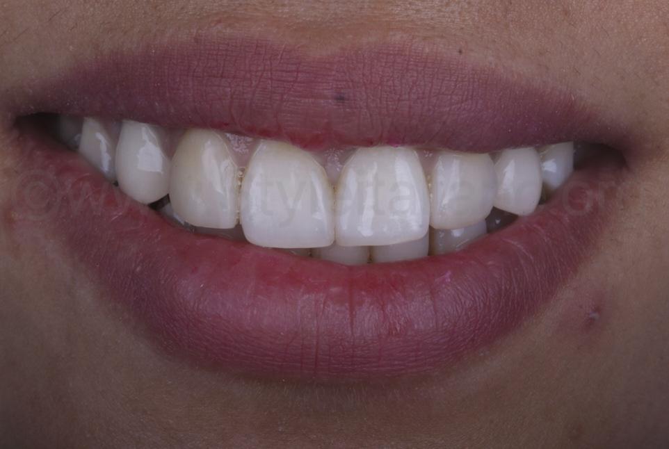 smile after midline dental gap closure