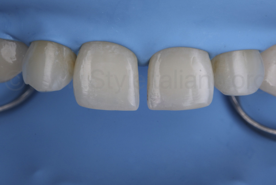 rubber dam isolation before retraction