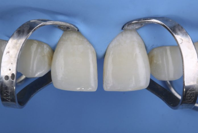 diastema with rubber dam isolation before composite restoration