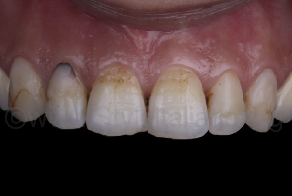 stained and unhealthy teeth
