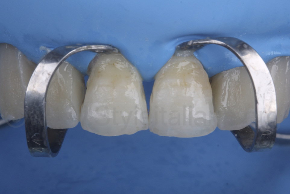 rubber dam retraction with B4 clamp on central incisors