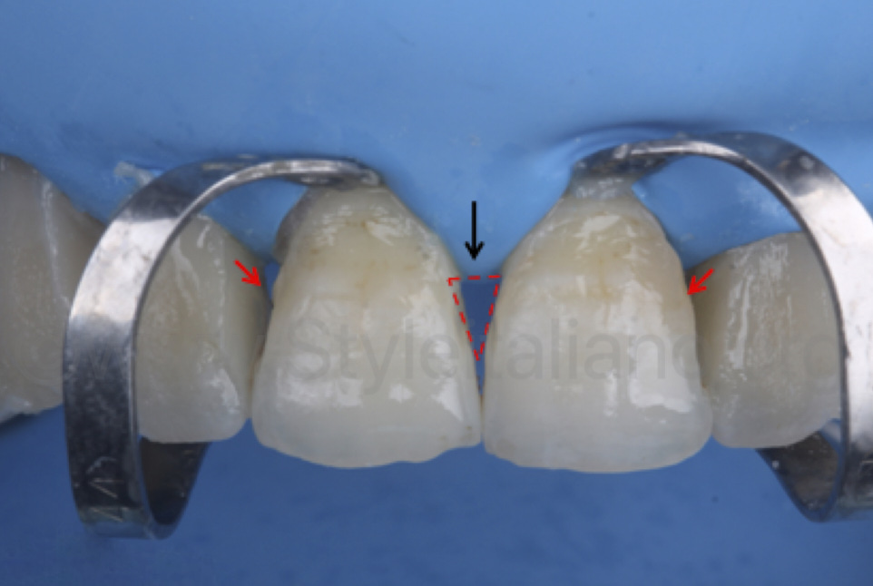 gingival embrasures to be filled with the front wing technique