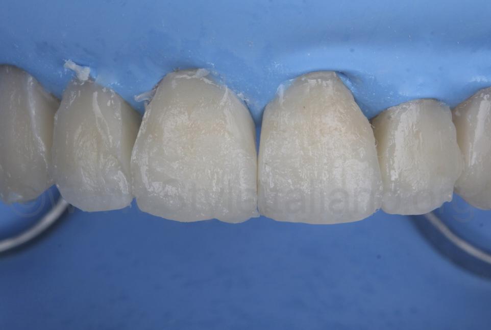 composite direct veneers before finishing