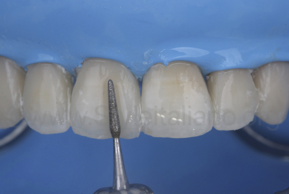 finishing and contouring of composite direct veneers