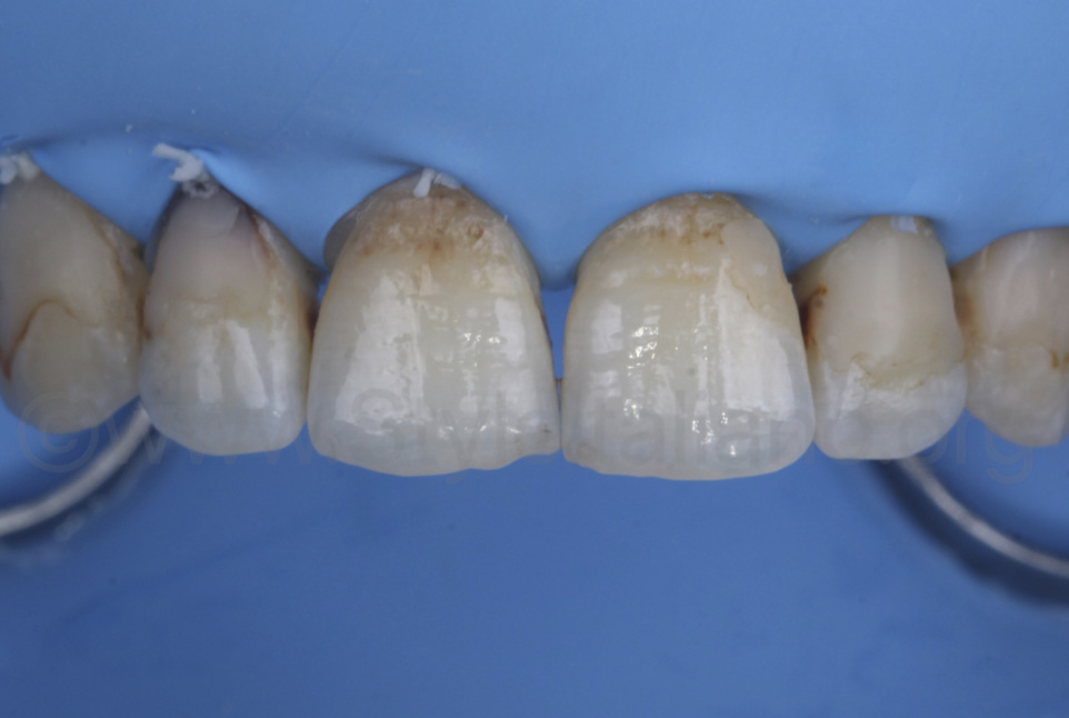 rubber dam isolation before removal of old fillings