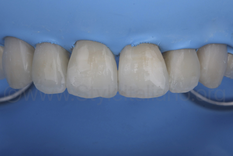 glossy composite veneers before rubber dam removal