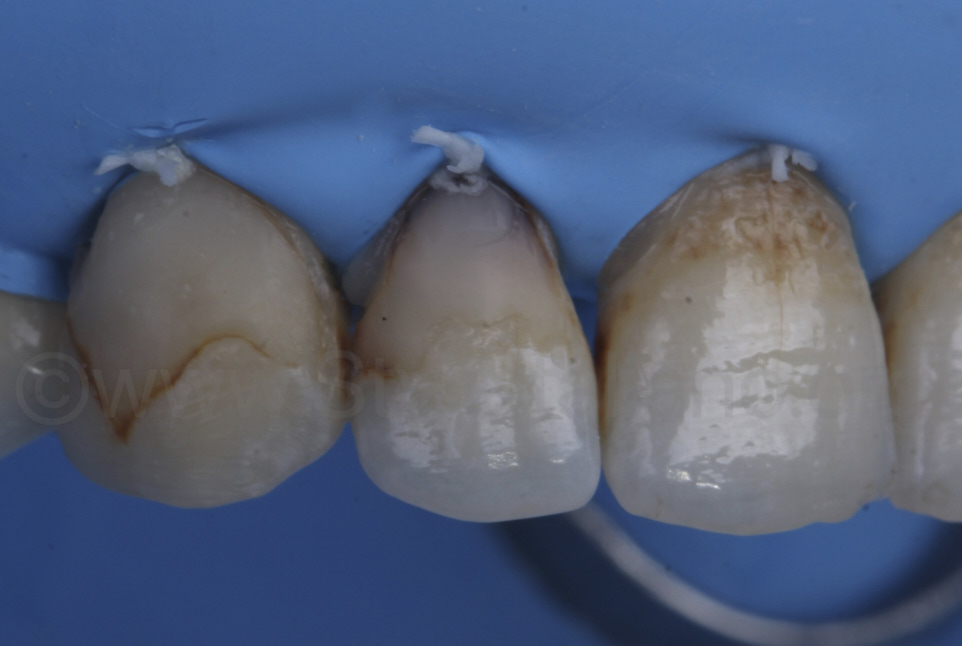 old infiltrated composite restorations