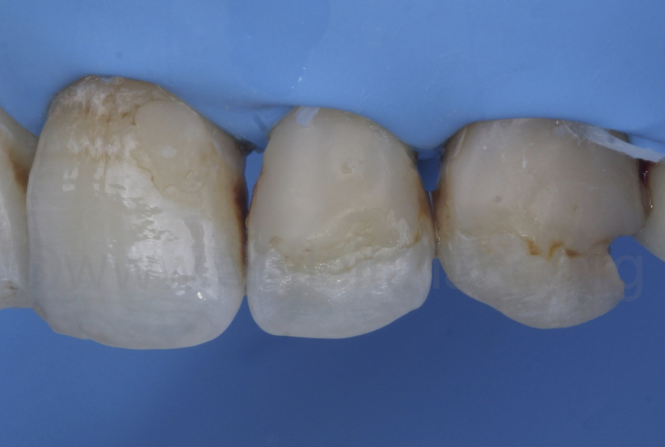 rough and discolour composite fillings