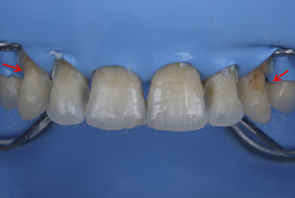 cervical structure loss after caries removal