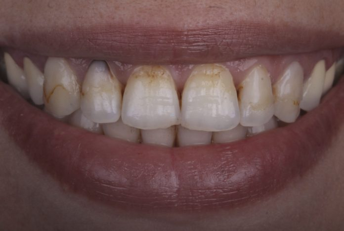 smile with stained teeth with caries
