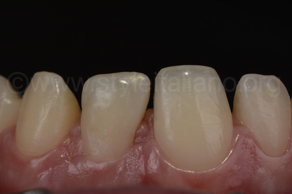 Stabilizing complex cases with single shade composites 3M style italiano