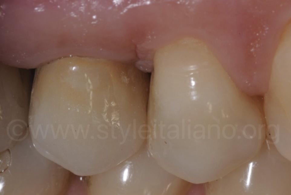 Protemp bicuspid 3M style italiano indirect restoration