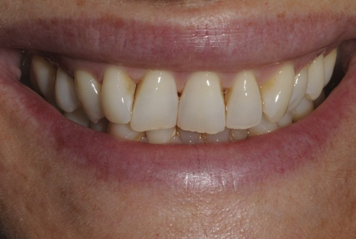 smile with yellow worn and rotated teeth