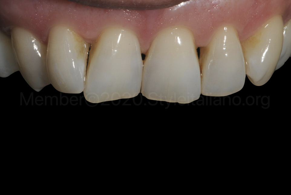 contrasted picture of upper teeth