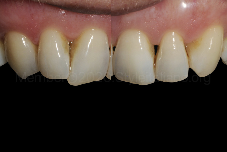 left and right upper teeth