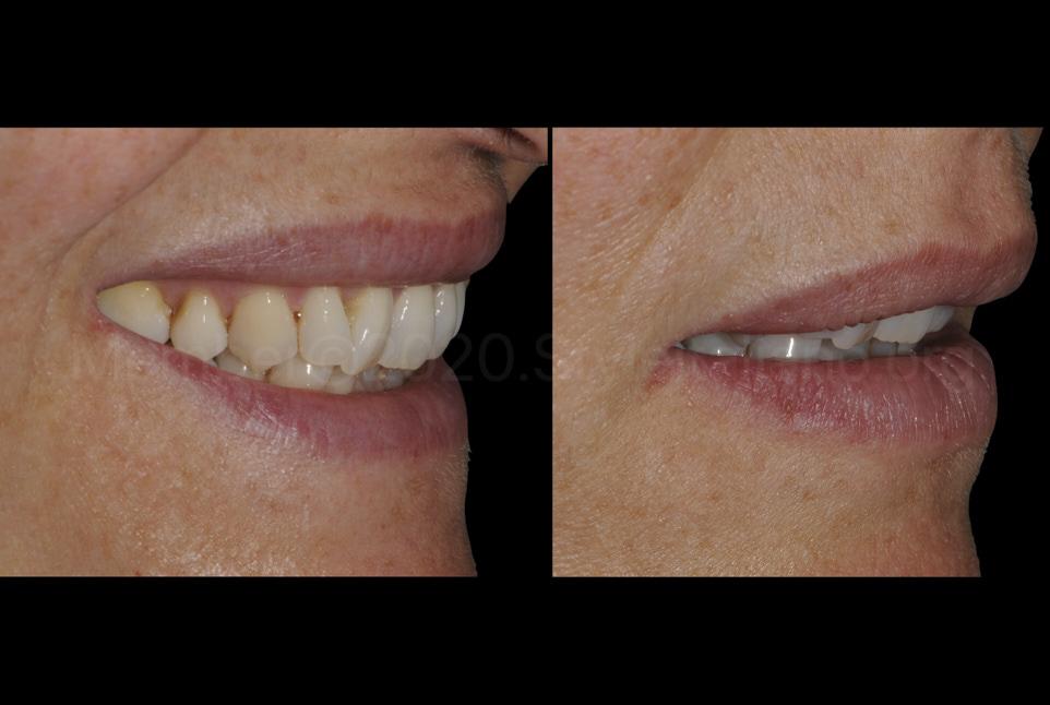 buccal space allowing direct veneering of teeth