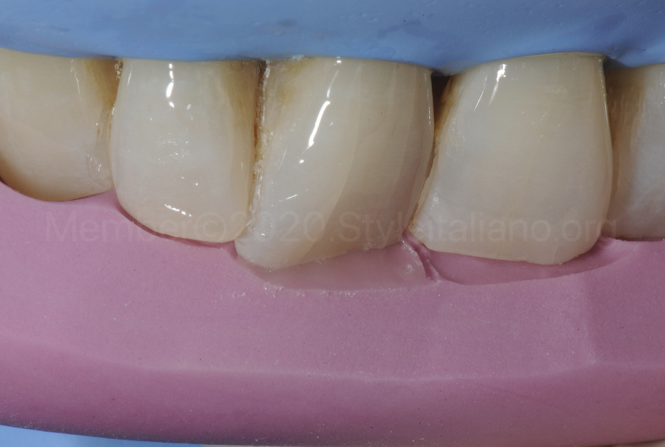 silicone key to build palatal wall with composite