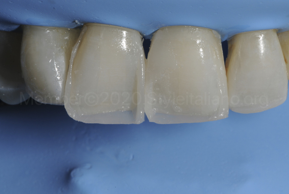 outer frame of dental direct reshaping