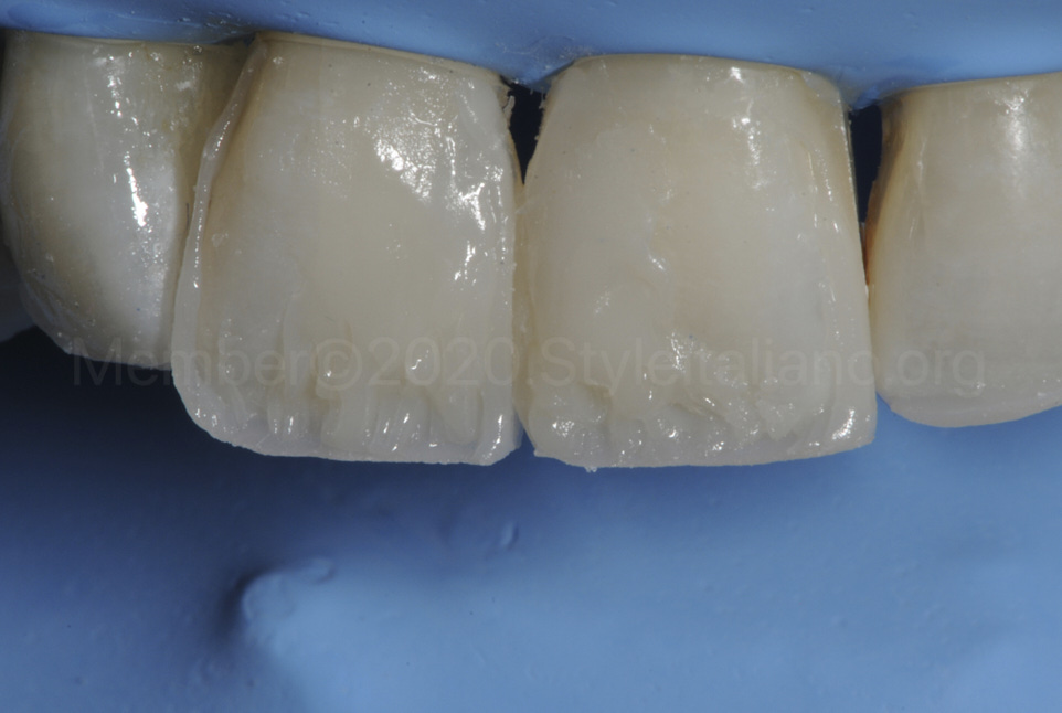 layering of dentin tmamelons with opaque composite