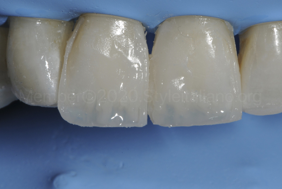 translucent composite to enhance dental anatomical features