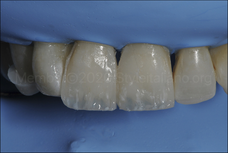 white stain for anatomical detail in composite restoration