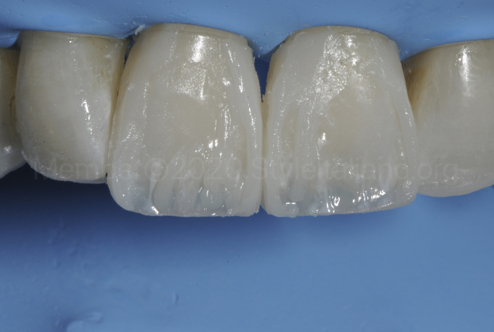 composite layering of direct veneers on central incisors