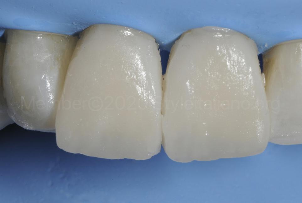 rough composite veneers before finishing procedures